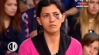 Tunisie : Hannibal TV Femme L'œil Au Beurre Noir Raconte Elle A été Frappée Par Son Mari